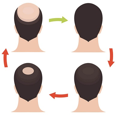 hair loss in patches