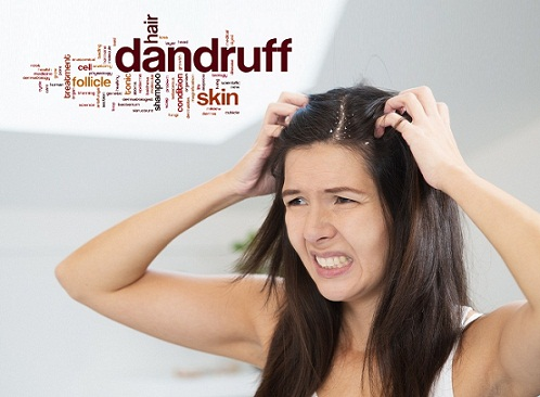 medicines for dandruff