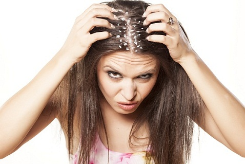 severe-dandruff-treatment