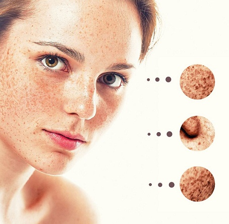best products for acne scars
