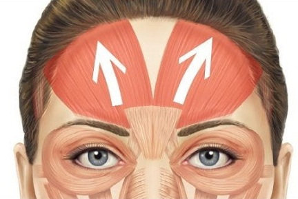 How To Remove Wrinkles From Forehead 7