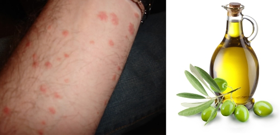 Olive oil for Psoriasis