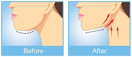 Reduce Double Chin Fast At Home