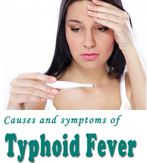 MedlinePlus Medical Encyclopedia: Typhoid Fever