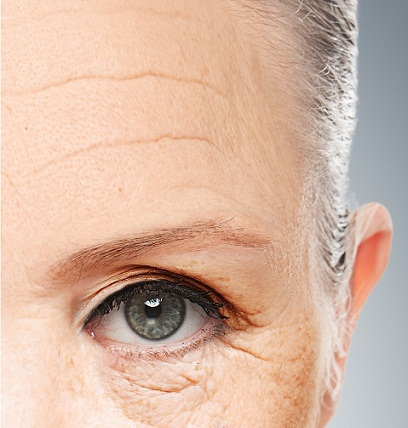 How To Remove Wrinkles From Forehead 2