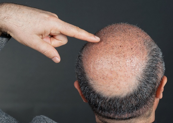 hair-transplant-in-mumbai