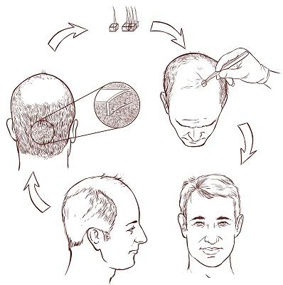 hair-transplantation-in-mumbai