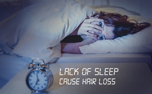 lack-of-sleep-hair-loss
