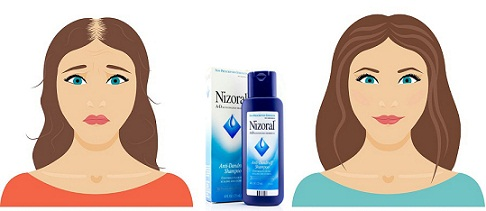 nizoral-for-hair-loss