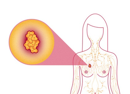 Breast Cancer Treatment types in india