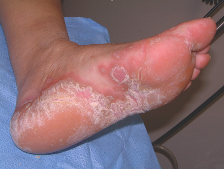 Cellulitis Natural Treatment