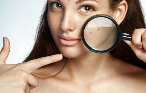pregnancy acne products