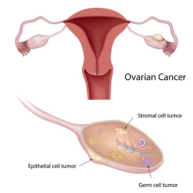 ovarian cancer during pregnancy