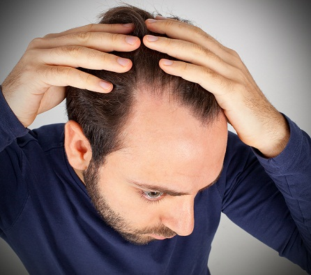stem-cell-therapy-for-hair-loss