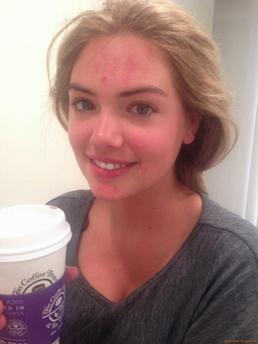 Kate Upton Without Makeup 9