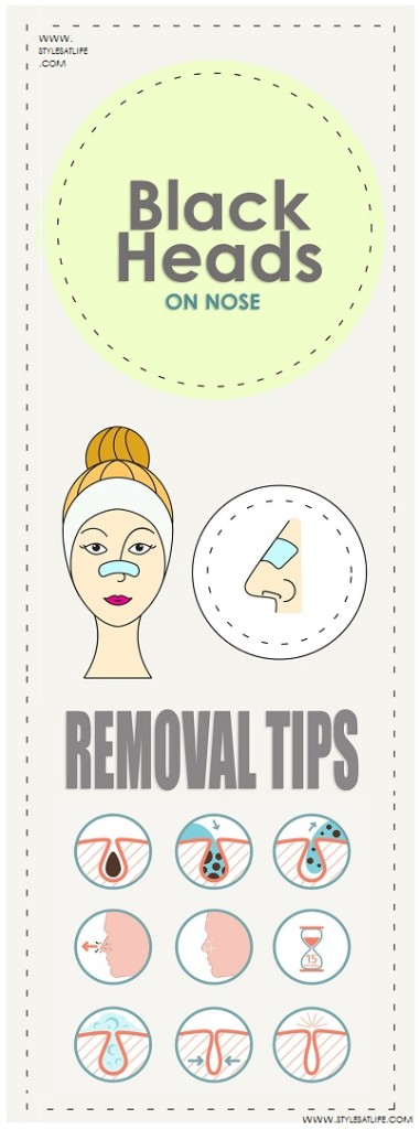 How To Remove Blackheads On Nose At Home Permanently