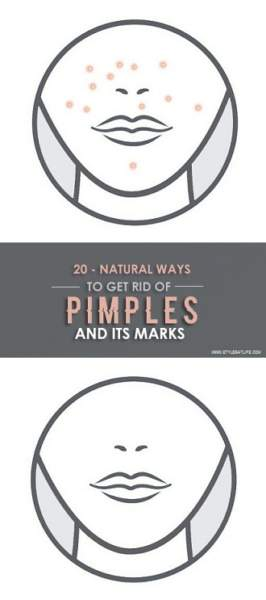 How To get Rid Of Pimples And Its Marks Naturally