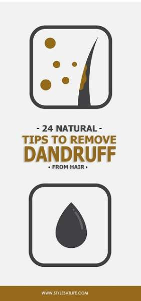 How to Remove Dandruff from Hair Permanently
