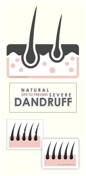How to Cure Severe Dandruff