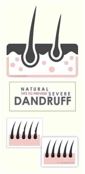severe dandruff