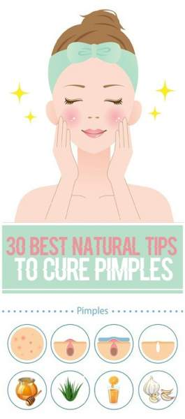 30 Fastest Natural Tips to Cure Pimples Completely from Face