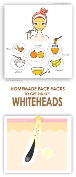 Homemade Face Packs for Whiteheads