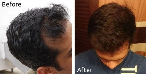 Mustard Oil for Regrowth of Hair with Cure for Greying Hair