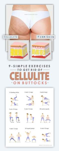 exercises to get rid of cellulite on buttocks