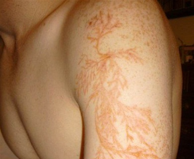 Real Lightning scar tattoos