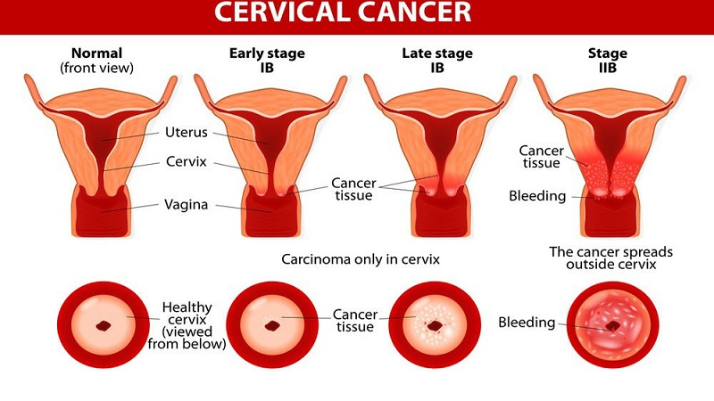 Cervical Cancer Symptoms And Causes