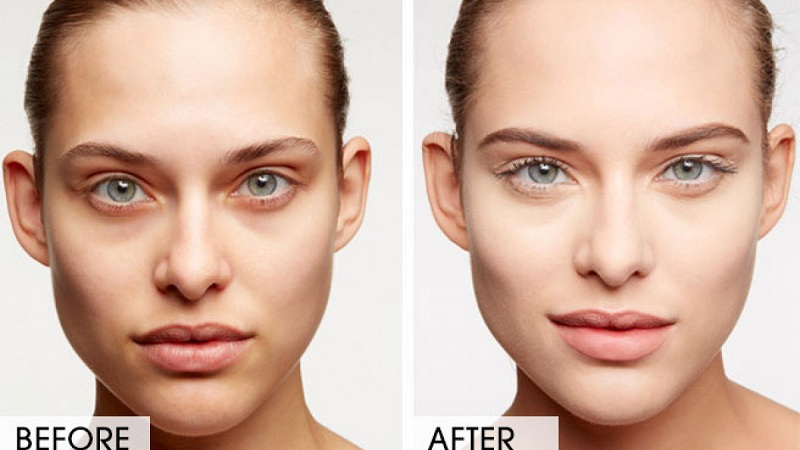 Fastest Ways to Remove Dark Circles Under Eyes