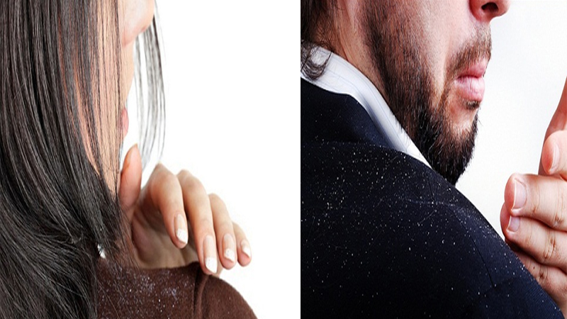 Cure Chronic Dandruff