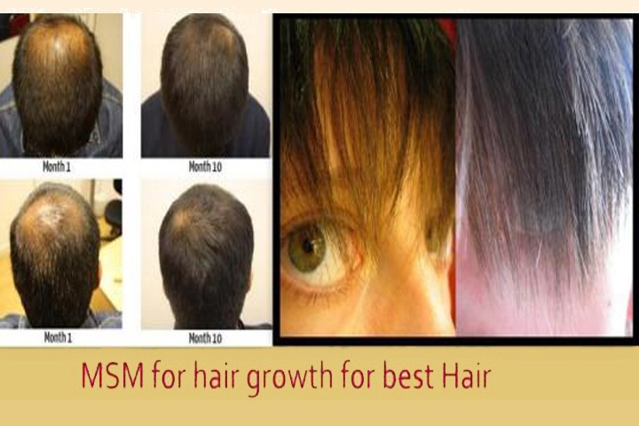 Is MSM Good for Hair Growth