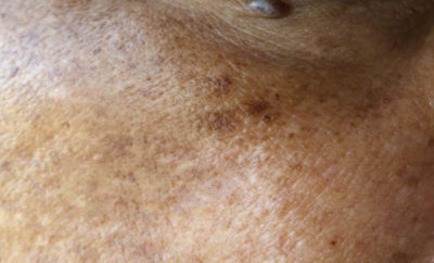 melasma home remedies