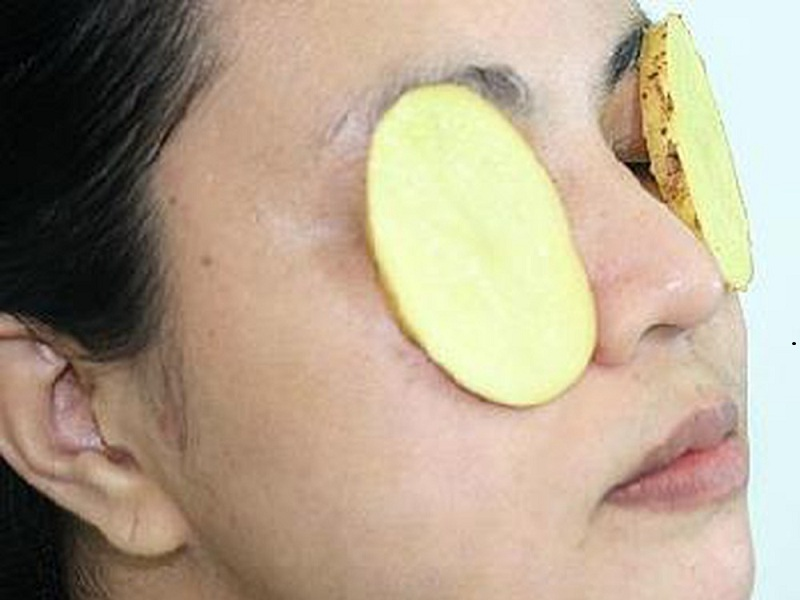 Potato Work for Dark Circles Under Eyes