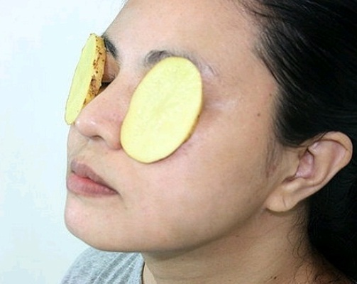 Raw Potato Slices for Dark Circles