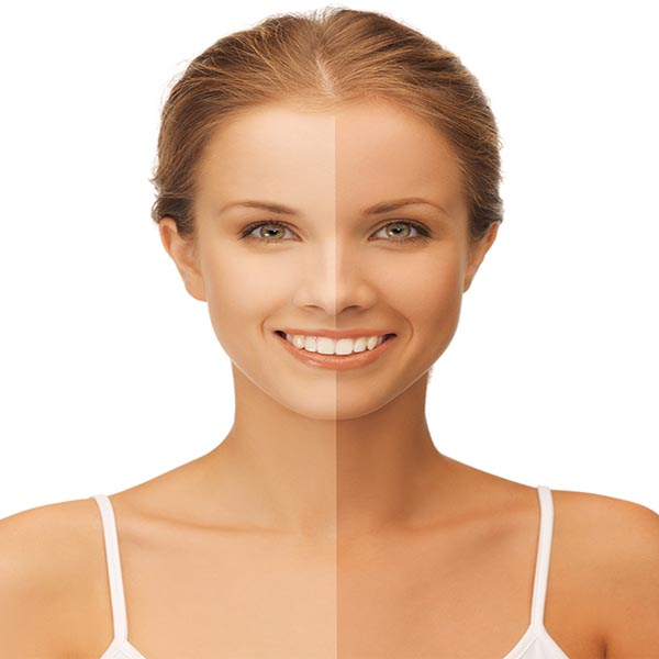 Remedies to Remove Tan From Face