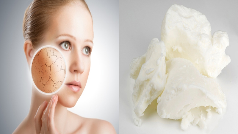 Best Homemade Moisturizers For Dry Skin