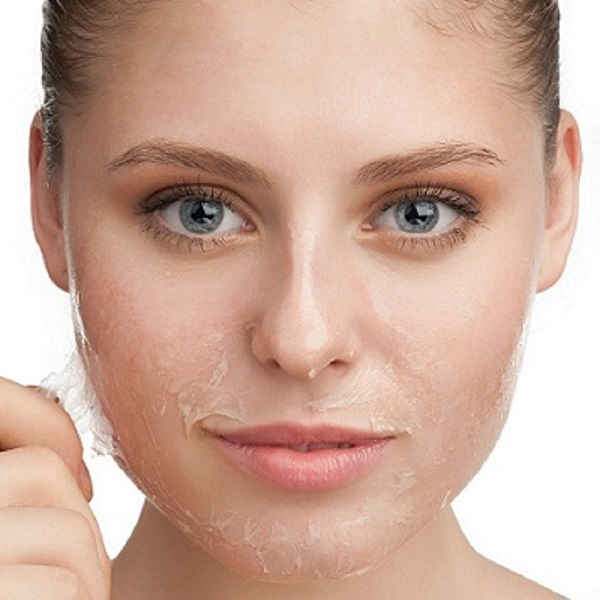 dry skin get rid