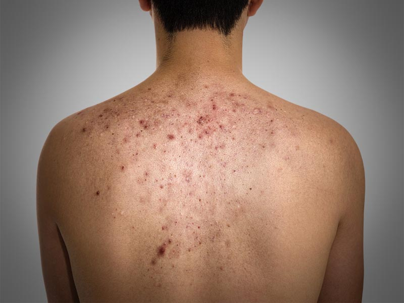 Home Remedies For Pimples On Back