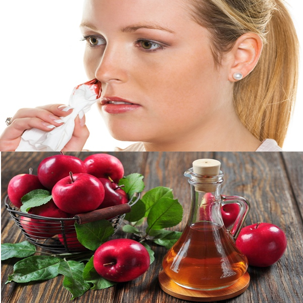 Home Remedies for Stop Nose Bleeding