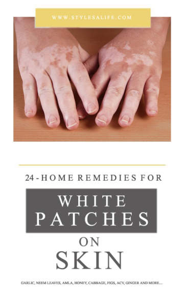 white patches on skin