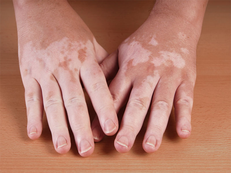 how to get rid White Patches on Skin