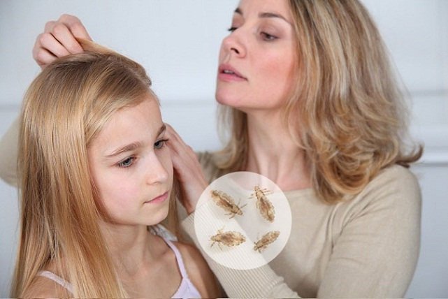 7 Best Natural Treatments To Get Rid Of Lice On Head Home Remedies