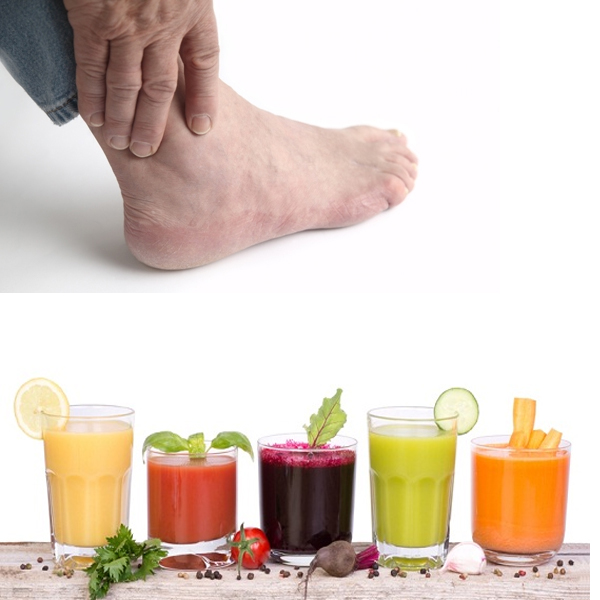 Amazing Home Remedies for Gout Pain Relief
