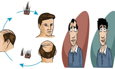 Best Hair Transplant Centers In Indore