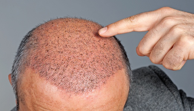 Hair Transplant Clinics all over india branches