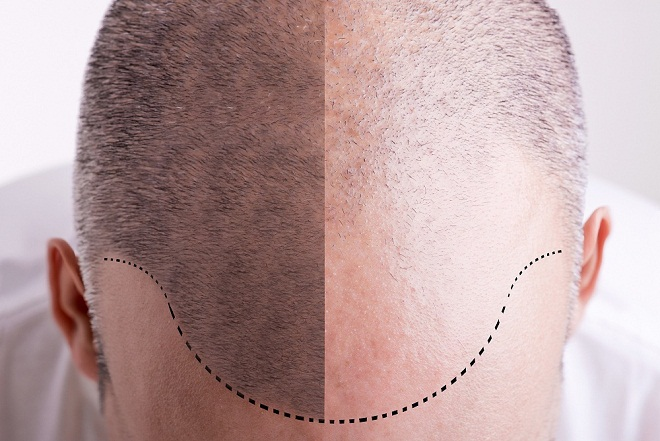 Hair Transplant Centers all over india branches