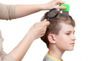 Causes of Hair Loss in Children