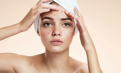 How To Avoid Pimples On Face Naturally